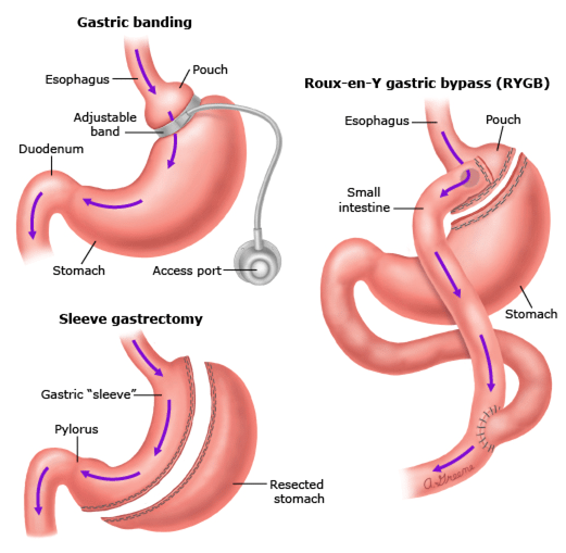 https://www.surgicalgroupnt.com/wp-content/uploads/2017/04/bariatric.png